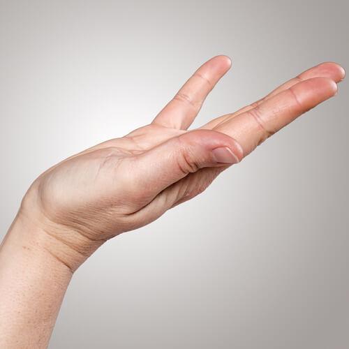 hand med markering för dubuytrens-skada