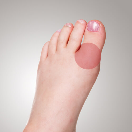 smärta ovanpå foten
