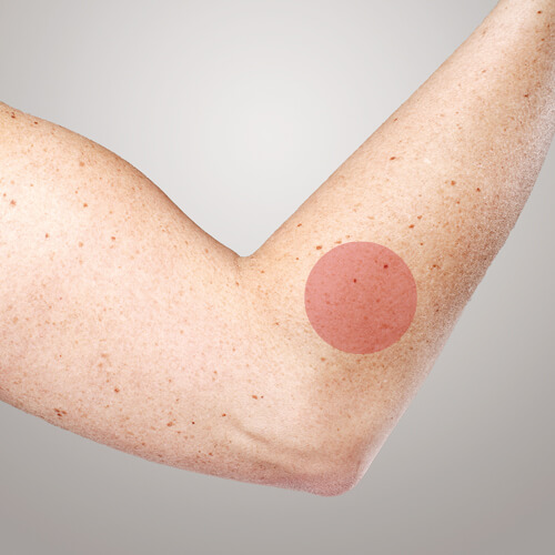 svullen armbåge infektion